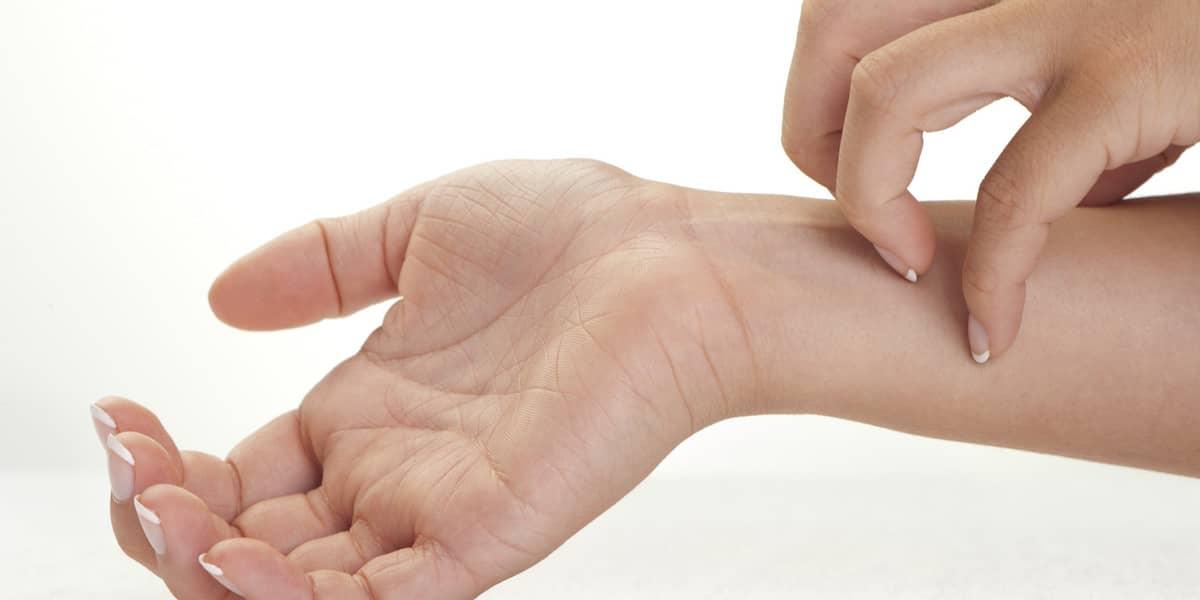 Acupuntura para eczema e psoríase