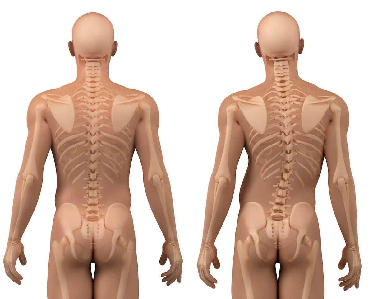 Escoliose – Causas, sintomas e tratamentos