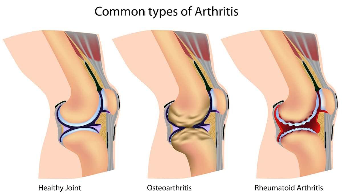 Aprenda mais sobre a Osteoartrose