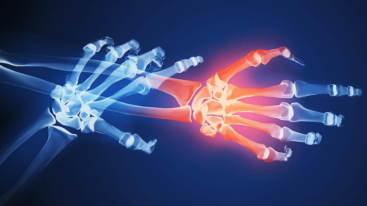10 maneiras de aliviar a dor da artrite reumatoide