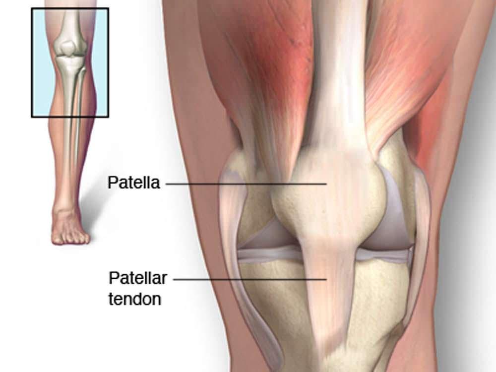 Dor no joelho tendinopatia patelar