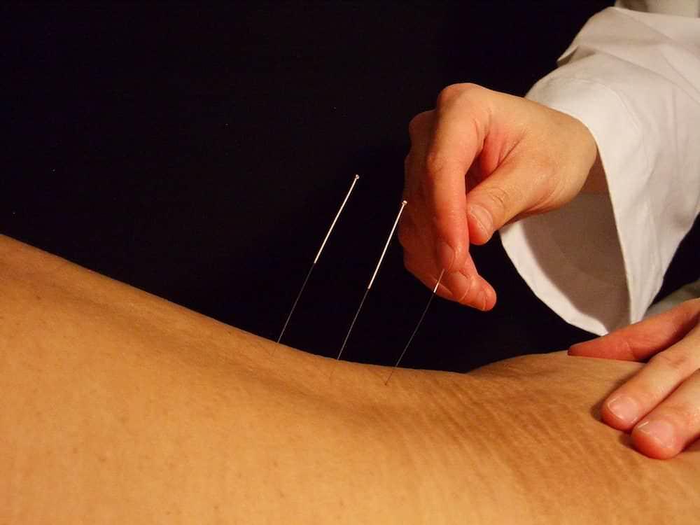 acupuntura marcus yu bin pai