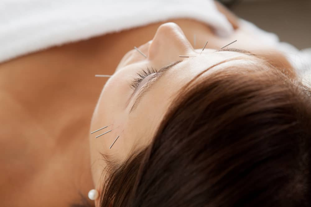 acupuntura stress