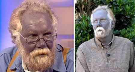 homem da pele azul O homem que ficou azul