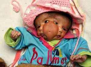 indianbabygod01 300x219 Bebê com duas caras vira atração na Índia