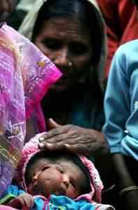 indianbabygod05 198x300 Bebê com duas caras vira atração na Índia