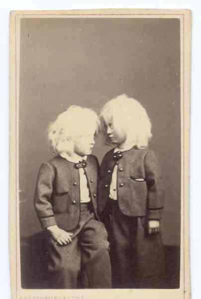 AlbinoChildren Albinismo: O branco que a natureza merece