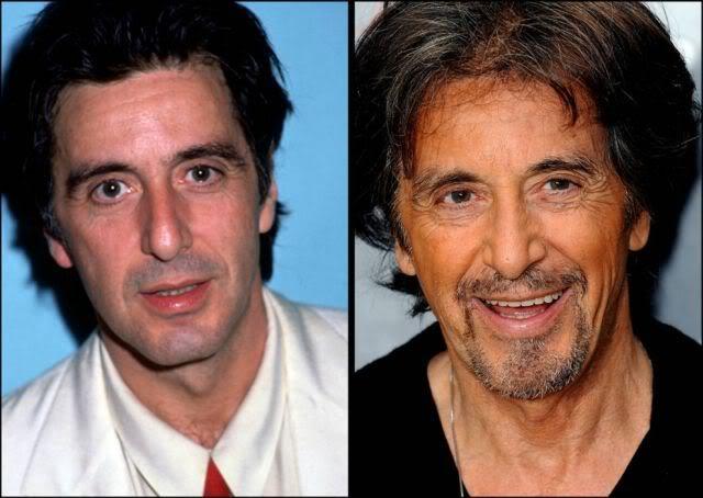 aging stars 15 Celebridades ontem e hoje