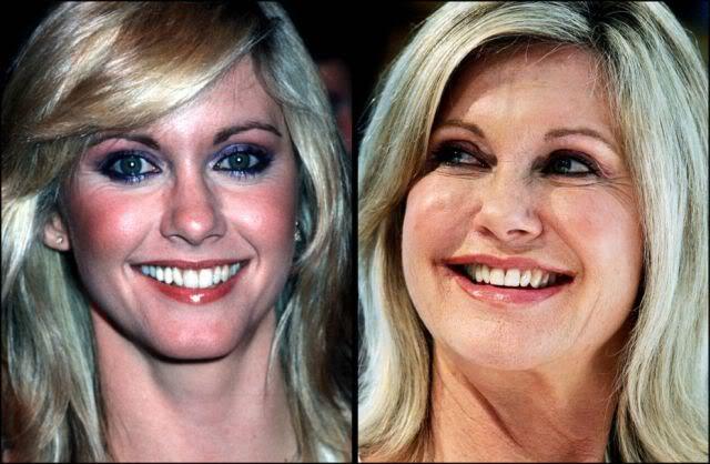 aging stars 24 Celebridades ontem e hoje