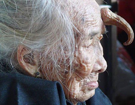 woman horn forehead A velha de 101 anos chifruda e seus amigos