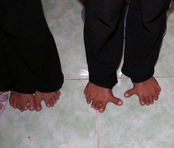 pezinho1 Top 10 pessoas com pés bizarros