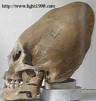 Giants 2 Mais um crânio alongado descoberto na Sibéria