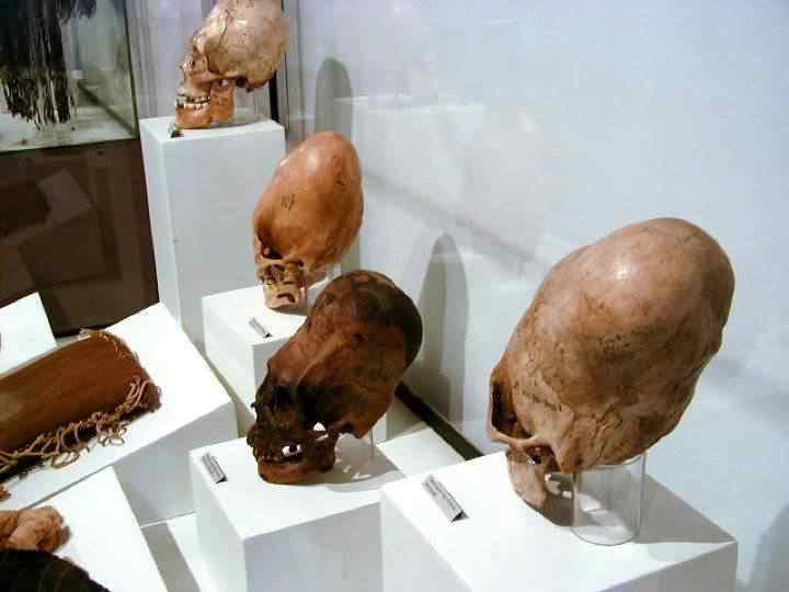 Klaus Dona 2 html m797eda8d1 Mais um crânio alongado descoberto na Sibéria