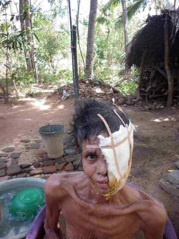 0 88051 e361205b XL A bactéria comedora de gente ataca no Sri Lanka