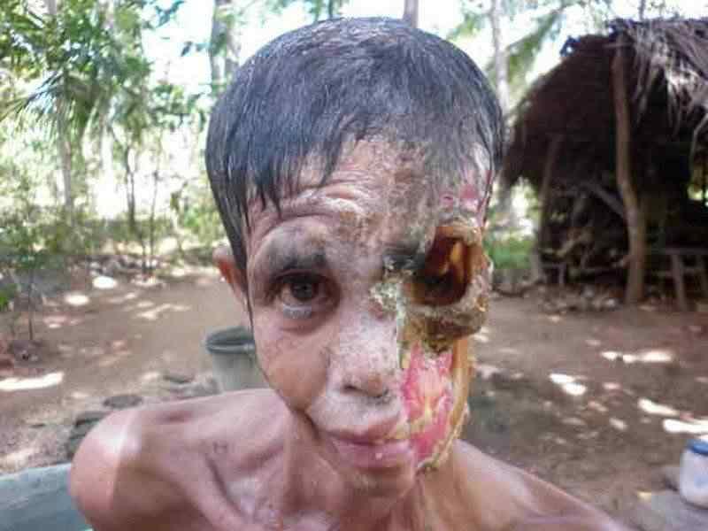 0 88052 3f30931a XL A bactéria comedora de gente ataca no Sri Lanka