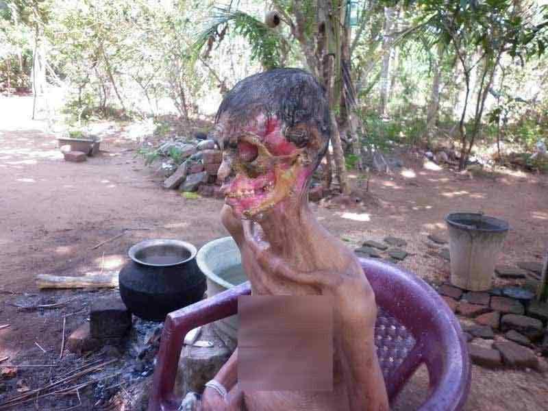 0 88053 7735f2 XL A bactéria comedora de gente ataca no Sri Lanka