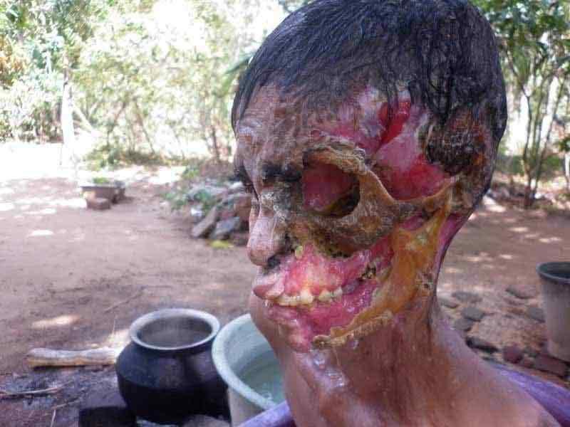 0 88054 29cfbdf4 XL A bactéria comedora de gente ataca no Sri Lanka