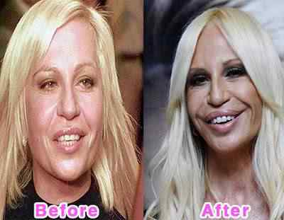 16-worst-celebrity-plastic-surgery-disasters
