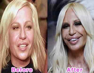16 worst celebrity plastic surgery disasters A curiosa planta que parece uma boca e pessoas com bocas que parecem plantas