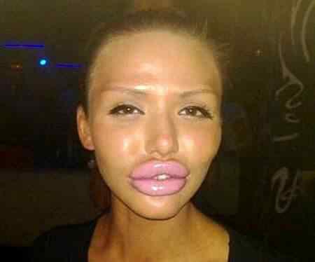 Ugly Lips Women FAIL A curiosa planta que parece uma boca e pessoas com bocas que parecem plantas