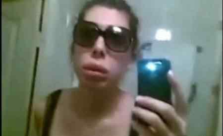 botox-lips-gone-bad-1
