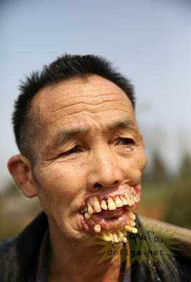 2 2 15 bizarrices envolvendo dentes