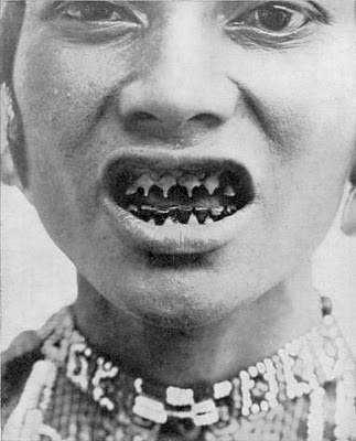 33526fee7c0bd393762cced5aa816e2d 15 bizarrices envolvendo dentes