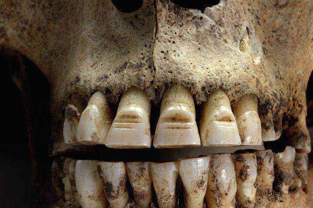 6377811d24cbc99856076b4f90e689b2 15 bizarrices envolvendo dentes