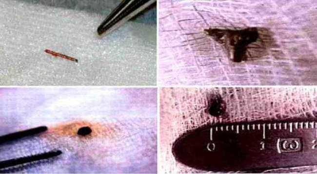 Alien Implants Aliens e Certezas nada absolutas