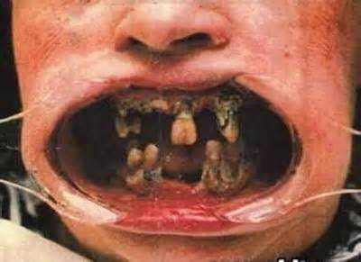 a971cb609c4061606f297b4f9c02167f 15 bizarrices envolvendo dentes