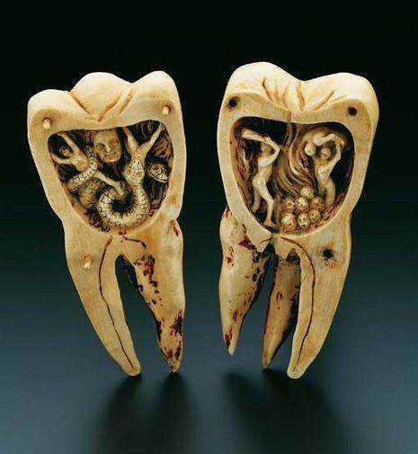 b25f0f08508d4724aa9bcd0602ff789c 15 bizarrices envolvendo dentes