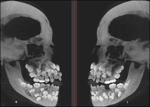 tumblr mjmb80ouGj1r9nf9oo1 500 15 bizarrices envolvendo dentes