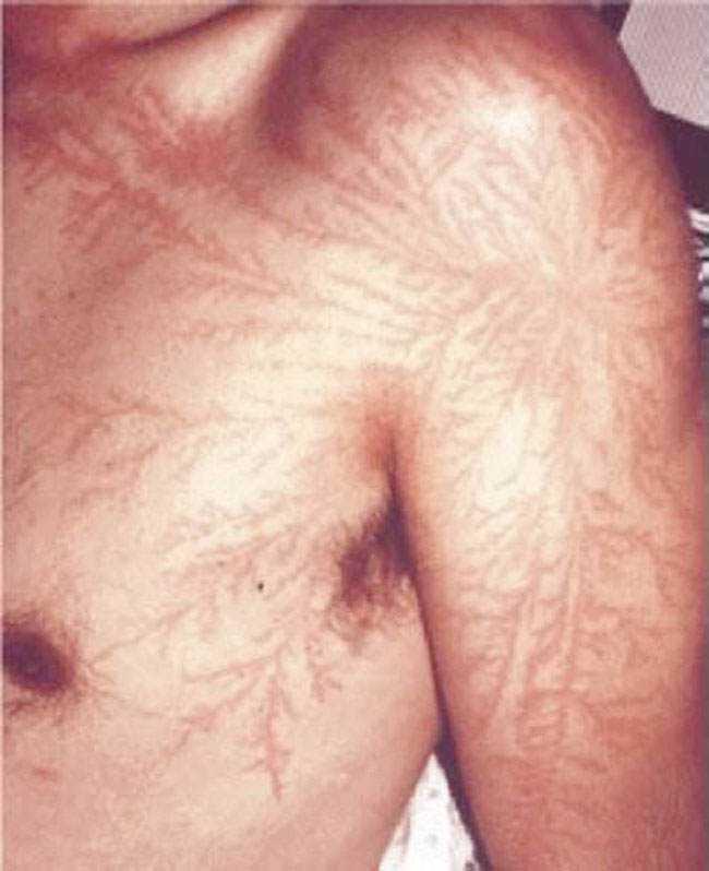 lightning strike scar lichtenberg figure 2 Lichtenberg figure, o mais estranho tipo de marca corporal
