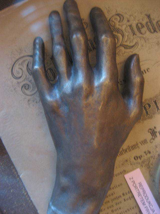 Cast_of_Chopin's_hand