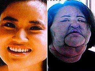 Hang Mioku Cirurgia plástica: Top 10 mudanças faciais bizarras