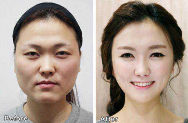 article 2610231 1D421C1000000578 11 634x416 Cirurgia plástica: Top 10 mudanças faciais bizarras