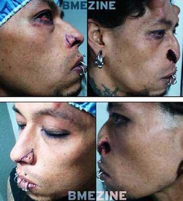 devil1 Cirurgia plástica: Top 10 mudanças faciais bizarras