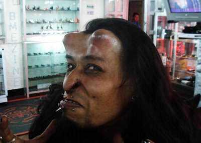 devil2 Cirurgia plástica: Top 10 mudanças faciais bizarras