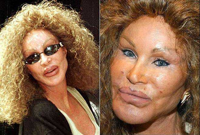joselyn Cirurgia plástica: Top 10 mudanças faciais bizarras