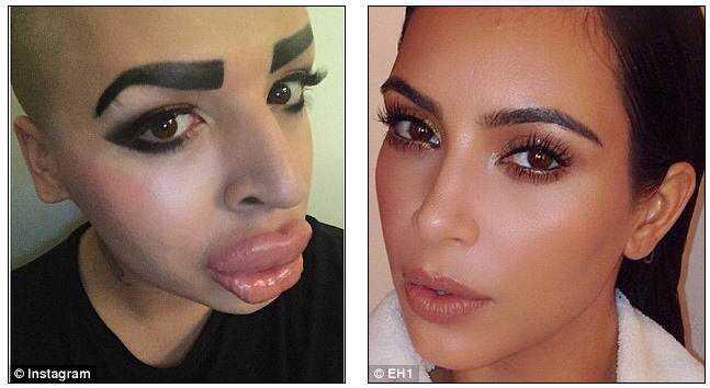 kim k wanna be Cirurgia plástica: Top 10 mudanças faciais bizarras