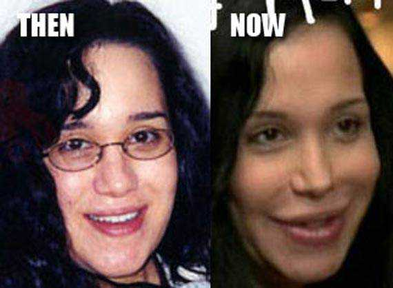 nadya-suleman-plastic-surgery-before-and-after