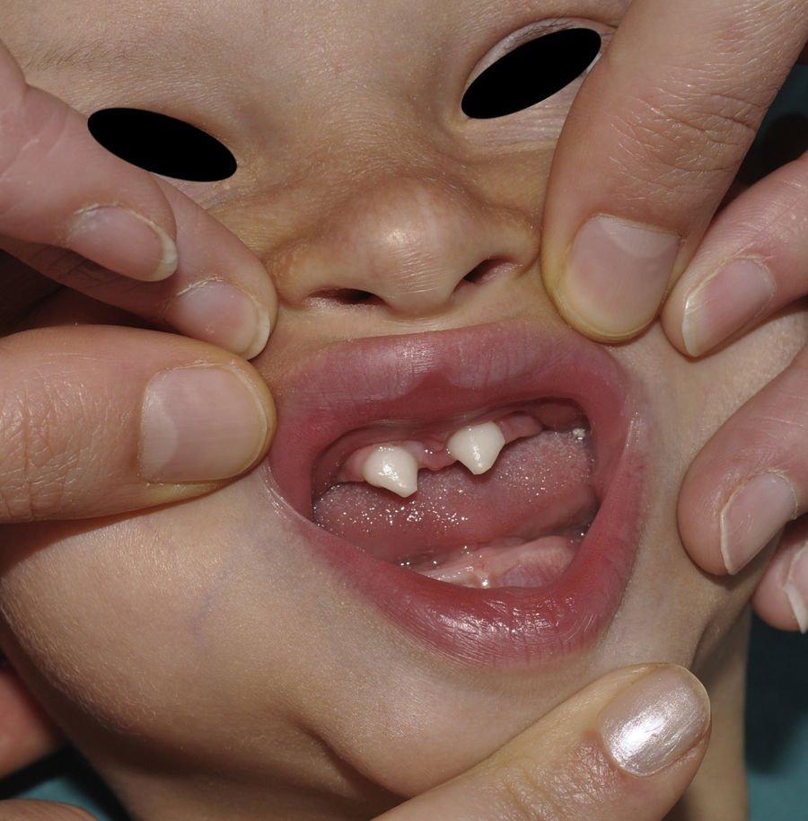 dentes de vampiro