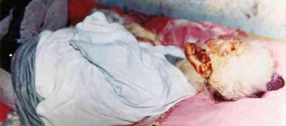 mutilacoes humanas topo 2 590x260 Estranha colheita: Mutilações humanas que intrigam qualquer um