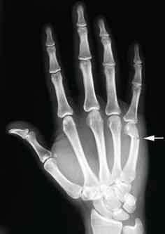 b8e872526fc489ef29ed606e88cd73cb hand surgery hand anatomy Investigadores independentes confirmam que a estranha múmia encontrada no deserto é de um extraterrestre. Será?