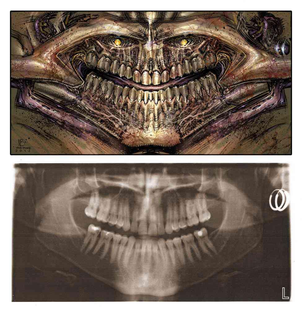 dental demon Ultra gump blaster mega pack ultimate post de monstros 4