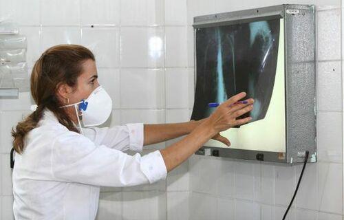 Saúde: Aplicativo criado na USP permite diagnóstico da covid-19 por meio de radiografia do pulmão