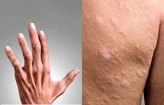 A hanseníase tem cura e o tratamento é oferecido de graça no Sistema Único de Saúde, o SUS / Foto: divulgação Ministério da Saúde