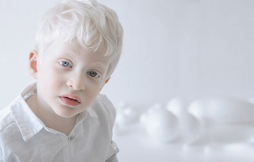 Albinismo - Foto: Sociedade Brasileira de Genética Médica