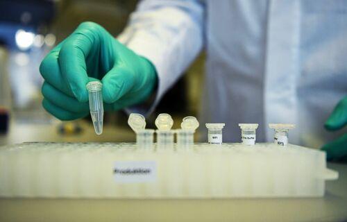 Estudo coronavírus. Foto: Agência Brasil
