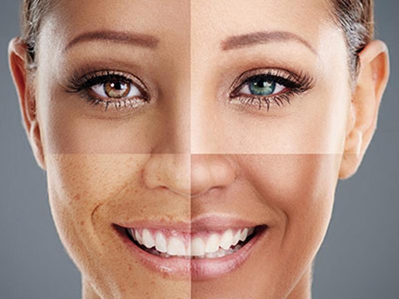 Existem quatro tipos de pele